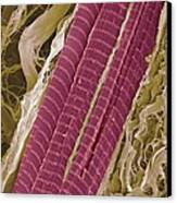 Primate Finger Muscle, Sem Canvas Print by Steve Gschmeissner