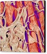 Trabeculae Carneae In The Heart, Sem Canvas Print by Susumu Nishinaga