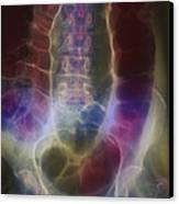 Twisted Colon Canvas Print by