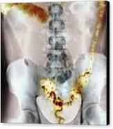 Ulcerative Colitis, X-ray Canvas Print