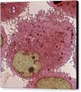 Leukaemia Cells, Tem Canvas Print by Steve Gschmeissner