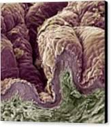 Skin Tissue, Sem Canvas Print by Steve Gschmeissner