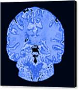Coronal View Mri Of Normal Brain Canvas Print by Medical Body Scans