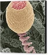 Vorticella Protozoan, Sem Canvas Print by Steve Gschmeissner