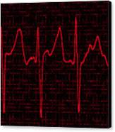 Atrial Fibrillation Canvas Print by Science Source