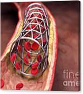 Arterial Stent Canvas Print