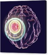 Brain Cancer Treatment Canvas Print