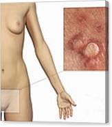 Genital Warts Canvas Print
