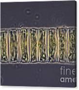 Ulothrix Sp. Algae, Lm Canvas Print