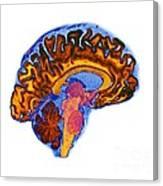 Normal Human Brain, Mri Scan Canvas Print