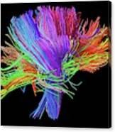 White Matter Fibres Of The Human Brain Canvas Print
