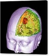 Brain Tumour Canvas Print