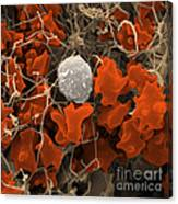 Blood Clot Canvas Print