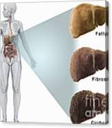 Stages Of Liver Disease Canvas Print