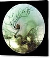 Brain Aneurysm Canvas Print
