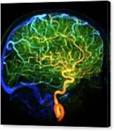 Brain Blood Vessels Canvas Print