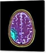 Meningioma Tumour Canvas Print