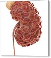 Polycystic Kidney Canvas Print
