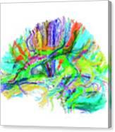 Advanced Mri Brain Scan Canvas Print