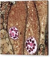 Chlamydia Infection Tem Canvas Print