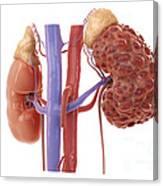 Polycystic Kidney Canvas Print