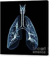 Human Lungs Canvas Print