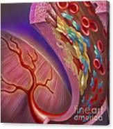Artery Showing Atherosclerotic Plaque Canvas Print