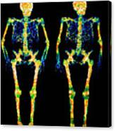 Bone Densitometry Scans Of The Skeletons Of Twins Canvas Print