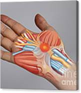 Carpal Tunnel Syndrome Canvas Print
