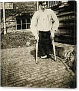 Child Labor, Frank, Whose Legs Were Cut Canvas Print