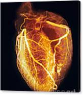 Colored Arteriogram Of Arteries Of Healthy Heart Canvas Print