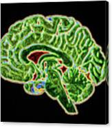 Coloured Ct Scan Of A Healthy Brain (side View) Canvas Print