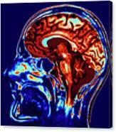 Coloured Mri Scan Of Brain In Sagittal Se Canvas Print
