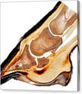 Equine Deep Digital Flexor Tendinitis 30172  Canvas Print