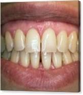 Healthy Adult Teeth Canvas Print