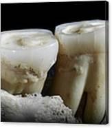 Homo Heidelbergensis Teeth Canvas Print