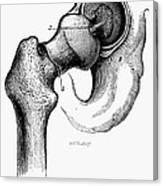 Human Hip Joint Canvas Print