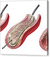 Insertion Of Stent Into Atherosclerotic Canvas Print