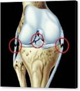 Knee Ligament Injuries Canvas Print
