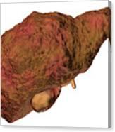 Liver Cirrhosis Canvas Print