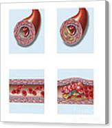 Normal Artery Compared To Plaque Canvas Print