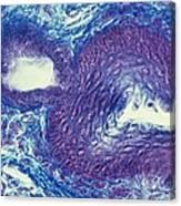 Sebaceous Gland, Light Micrograph Canvas Print