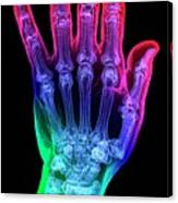 Thumb Fracture Canvas Print