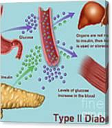 Type 2 Diabetes Canvas Print