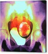 Uterine Fibroid Canvas Print