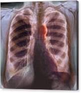 Aortic Aneurysm, X-ray Canvas Print