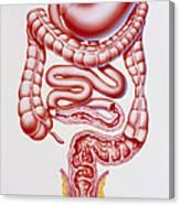 Artwork Of Crohn's Disease And Ulcerative Colitis Canvas Print