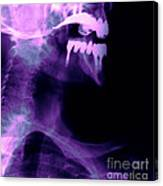 Dental Work Canvas Print