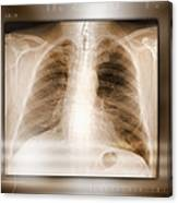 Heart And Lungs, X-ray Canvas Print