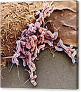Helicobacter Pylori Bacteria, Sem Canvas Print